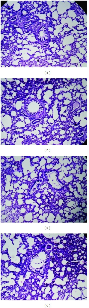 Histology of spleen (H&E, 100x) of control and OSE-treated animals. (a) Section of spleen from control animal showed normal granular hemosiderin pigment predominantly within macrophages in the red pulp; ((b), (c), and (d)) spleen from OSE (200, 400, and 800 mg/kg)-treated animals exhibit normal hemosiderin pigment predominantly within macrophages in the red pulp with normal structure.