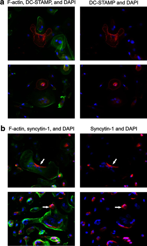 DC-STAMP and syncytin-1 are heterogeneously localized in (pre)OCs. Visualization of DC-STAMP and syncytin-1 in (pre)OCs (1 × 105 per well) differentiated for 5 days with RANKL. Nuclei were visualized with DAPI (blue). a Staining of DC-STAMP (red) and F-actin (green). b Staining of syncytin-1 (red) and F-actin (green). Note pattern of heterogeneous localization of both these proteins in cells in close proximity and opposite polarization of syncytin-1 (arrows)