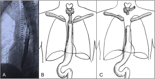 Diagnosis of ESSC, Esophagectomy and Esophagostomy after conduit failure. A) Workup including esophageal fluoroscopy at first presentation of the patient revealed an ESSC at 20-25 cm from the incisors. B) Status post Ivor-Lewis thoraco-abdominal esophagectomy with gastric pull-up and circular end-to-side stapled cervical anastomosis. C) Status post cervical esophagostomy and stump closure of the gastric pull-up conduit, which remained in situ within the right hemithorax.