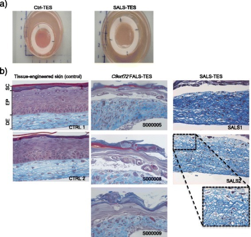 Structural abnormalities detected in ALS-derived tissue engineered skins. a) Macroscopic pictures of control-derived and ALS-derived tissue-engineered skins when cultured at the air-liquid interface. b) Masson's trichrome colorations, specifically staining the dermis (DE) in blue and epidermis (EP) in purple, revealed a number of structural abnormalities including undifferentiated epidermis, abnormal dermo-epidermal junctions, delamination, abnormal collagen organization, keratinocyte infiltration and cohesive failure of the stratum corneum (SC) in both C9orf72 FALS- and SALS-derived skins. In contrast control-derived reconstructed skins showed a well-developed and differentiated epidermis and highly organized dermis.