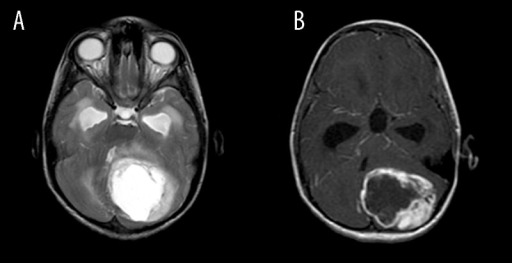 9 year old boy with pilocytic astrocytoma axial t2 a for Cystic lesion with mural nodule