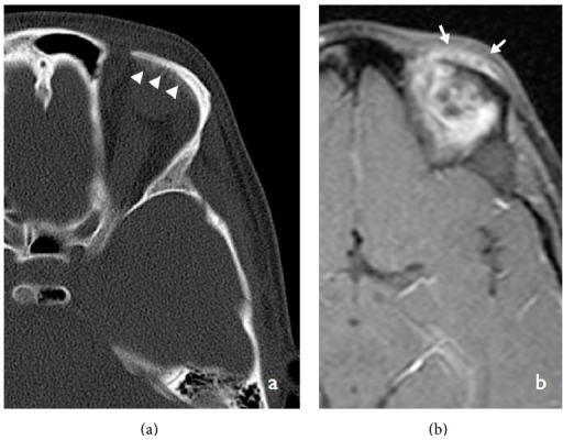 Axial noncontrast enhanced CT section in bone window projection (a) showing periosteal reaction exerted by the lesion on the superior orbital ridge seen as amorphous density. Contrast-enhanced sagittal T1-weighted MRI image (b) showing an amorphous area of enhancement of the lesion.