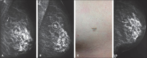 A,B: Mediolateral oblique and craniocaudal views of left breast showinga partially calcified nodule (circle) and a cluster of pleomorphicmicrocalcifications (arrow) located in the superolateral quadrant of the breast.C,D: Metal clip on the dermal nevus with talc residues in itsfissures, and craniocaudal view of the left breast demonstrating that the cluster ofmicrocalcifications corresponded to talc residues.