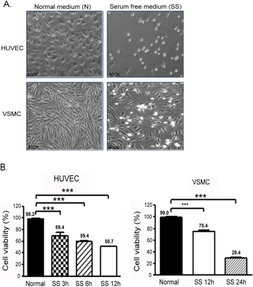 SS of HUVECs and VSMCs.(A) Effect of 24-h SS on cell morphology and density of HUVECs and VSMCs (right panel). (B) Cell viability was assessed after SS in HUVECs (at 3, 6, and 12 h) and in SMCs (at 6 and 12 h). The mean percentages of at least 3 independent experiments are represented in both cells. The square insert indicates the magnified area. ***P < 0.001 in comparison to cells without SS. Data are expressed as the mean ± SE and are representative of 3 experiments.