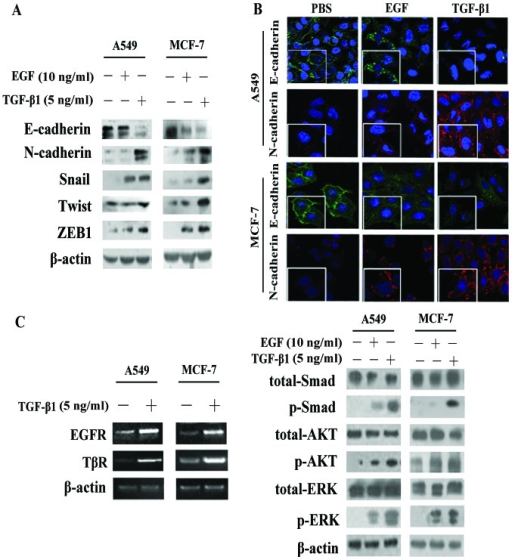 Transforming growth factor-β1 (TGF-β1) is an important inducer of epithelial-mesenchymal transition (EMT) compared with epidermal growth factor (EGF). (A) Western blot analysis of EMT-related proteins in A549 and MCF-7 cells treated with TGF-β1 (5 ng/ml) or EGF (10 ng/ml). (B) Immunofluorescence staining was conducted to detect E-cadherin (green) and N-cadherin (red) expression in the A549 and MCF-7 cells, which were treated with EGF or TGF-β1 for 24 h. The nuclei were visualized with 4′,6-diamidino-2-phenylindole staining (DAPI, blue). Images were taken at ×200 magnification. (C) RT-PCR was used to measure the mRNA levels of EGFR and TGF-β1 receptor (TβR) following stimulation with TGF-β1. Western blot analysis detected the activation of phosphorylated (p-) Smad, downstream of TGF-β1, and the activation of p-AKT and p-ERK, downstream of EGF/EGFR in the A549 and MCF-7 cells following stimulation with TGF-β1 or EGF.