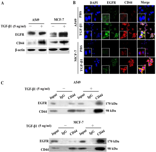Transforming growth factor-β1 (TGF-β1) induces CD44 and EGFR expression and co-localization. (A) Analysis of the expression levels of epidermal growth factor receptor (EGFR) and CD44 by western blot analysis in A549 and MCF-7 cells, in the absence or presence of TGF-β1. (B) Immunofluorescence staining was conducted to detect EGFR (green) and CD44 (red) expression in A549 and MCF-7 cells, which were stimulated with or without TGF-β1 for 24 h. The nuclei were visualized with 4′,6-diamidino-2-phenylindole staining (DAPI, blue). Images were captured at ×200 magnification. (C) Co-IP analysis was performed using the A549 and MCF-7 cells. EGFR proteins were immunoprecipitated using an antibody against CD44. IgG was used as a negative control.