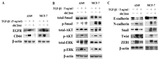 shRNA targeting CD44 (shCD44) blocks the activation of the AKT and ERK pathways and causes the reversal of epithelial-mesenchymal transition (EMT). (A) Western blot analysis revealed that the CD44 protein levels and epidermal growth factor receptor (EGFR) expression were altered following stimulation with transforming growth factor-β1 (TGF-β1) or TGF-β1 plus shRNA. β-actin was used as a loading control. (B and C) Western blot analysis of the expression of downstream pathways and EMT-related proteins, such as E-cadherin, vimentin, Snail and Twist, following stimulation with TGF-β1 or TGF-β1 plus shCD44. β-actin was used as a loading control.