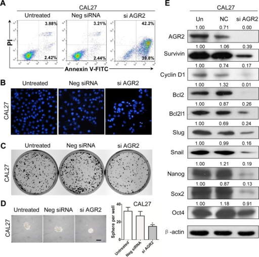Knock down of AGR2 induces cell apoptosis and reduces colony formation in CAL27 cell line(A) Annexin V-FITC/PI dual labeling assay showed AGR2 siRNA enhance apoptosis in CAL27 cell lines by using flow cytometry; (B) The morphologic changes of CAL27 cell lines transfected with AGR2 siRNA was observed by fluorescence microscopy with DAPI staining; (C) Knock down of AGR2 in CAL27 cell line reduced anchor dependent colony formation; (D) Knock down of AGR2 in CAL27 cell line reduced sphere formation; Scale bar=100μm;(E) Western blot analysis revealed that the protein level of Survivin, Cyclin D1, Bcl2, Bcl2l1, Slug, Snail, Nanog, Sox2 and OCT4 were reduced in different degrees after AGR2 konck down for 48h. Quantification is performed using Image J by pixel analysis of band by normalized of β-actin as a loading control. Neg siRNA, negative siRNA,si AGR2, AGR2 siRNA.