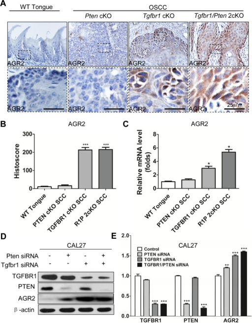 Increased expression of AGR2 is associated with Tgfbr1 deletion(A) Immunohistochemistry of AGR2 in tongue of the wild type (WT) mice, the tumor of Pten conditional knock out mice, Tgfbr1 conditional knock out mice and Pten/Tgfbr1 conditional knock out mice (Scale bar+25μm); (B) Quantitative of histoscore of AGR2 in wild type mice, Pten conditional knock out mice, Tgfbr1 conditional knock out mice and Pten/Tgfbr1 conditional knock out mice. Expression of AGR2 in Tgfbr1 conditional knock out mice and Pten/Tgfbr1 conditional knock out mice was significantly higher than the wild type mice (P < 0.001); (C) Quantitative Real-time PCR revealed the mRNA level of AGR2 in Tgfbr1 conditional knock out mice and Pten/Tgfbr1 conditional knock out mice was significantly increased when compared with the wild type mice; (D) Western blot analysis of AGR2 48h after knocking down PTEN, TGFBR1, and combined TGFBR1/PTEN by using siRNA; (E) Quantitative analysis showed the protein level of AGR2 in TGFBR1 siRNA group and TGFBR1/PTEN combined siRNA group were significantly higher than the control group (P < 0.001). Mean±SEM, ***, P<0.001.