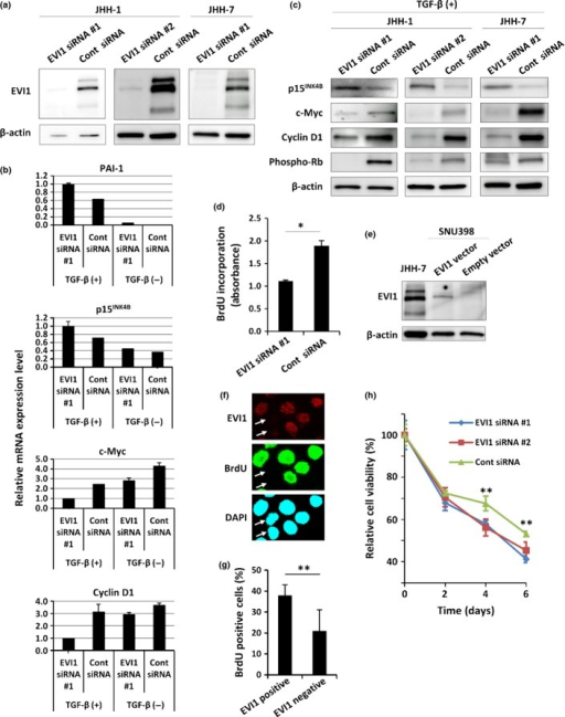 Effect of EVI1 knockdown on transforming growth factor-β (TGF-β)-mediated growth inhibition in JHH-1 hepatocellular carcinoma cells. (a) Immunoblot analysis of EVI1 and β-actin, an internal control, in JHH-1 and JHH-7 cells transfected with EVI1 (#1) or EVII (#2) siRNA as indicated or with control siRNAs. (b) Relative mRNA expression levels of the indicated genes in JHH-1 cells that were transfected with EVI1 (#1) or control (Cont) siRNAs and were then treated with TGF-β1 (10 ng/mL) or vehicle for 24 h. (c) Immunoblot analysis of the indicated proteins in JHH-1 and JHH-7 cells that were transfected with EVI1 siRNA (#1 or #2 as indicated) or with control siRNA and were then treated with TGF-β1 for 24 h. (d) BrdU incorporation as determined by ELISA. JHH-1 cells transfected with EVI1 siRNA (#1) or control siRNA were treated with TGF-β1 for 24 h and were then labeled with BrdU for 6 h. $P < 0.01. (e) Immunoblot analysis of EVI1 in SNU398 cells transfected with the EVI1 expression vector or an empty vector. JHH-7 cells were used as a positive control. (f, g) SNU398 cells transfected with the EVI1 expression vector were treated with TGF-β1 for 12 h then labeled with BrdU for 12 h. (f) Immunofluorescence. The cells were triple-labeled with anti-EVI1 (red), anti-BrdU (green), and DAPI (blue; nuclei). In this image, EVI1-positive cells were positive for BrdU, whereas EVI1-negative cells were negative for BrdU (arrows). (g) Percentage of BrdU-positive cells in EVI1-positive or -negative cells. More than 300 cells were counted for each group. $$P < 0.05. (h) JHH-1 cells were transfected with EVI1 siRNA (#1 or #2) or control siRNA then treated with TGF-β1. Relative cell viability (%) is shown at the indicated times after TGF-β1 treatment. $$P < 0.05.