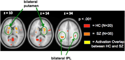 Conjunction analyses: Reward gain versus no monetary gain. Bilateral putamen and L. IPL regions show activation overlap in the two groups.