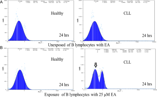 The effect of EA on ΔΨm of healthy and CLL B-lymphocytes (A and B). Freshly isolated purified B-lymphocytes were incubated with 25 µM EA for 24 h. ΔΨm was measured following rohodamine 123 staining with flow cytometry. The presented data revealed that exposure to EA caused a significant decrease in ΔΨm in CLL B-lymphocytes compared with those suspended in the EA-free medium with 0.05% (v/v) DMSO (untreated CLL control).