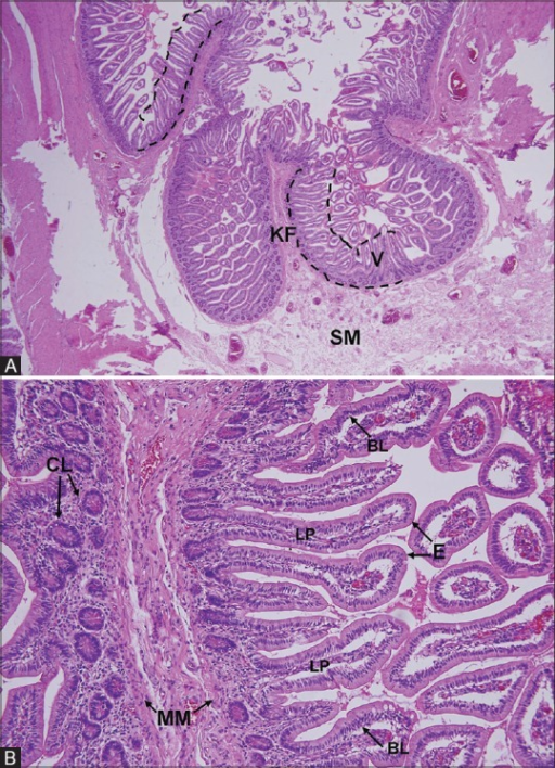 A 44-year-old woman with an adhesion-induced hernia in the pelvic cavity. (A) Photomicrograph (hematoxylin and eosin stain, original magnification ×40) shows the surgical margin of a resected small-bowel segment and a normal Kerckring fold (KF). Covering the surface of the fold is an aggregation of numerous villi (V), which forms the mucosa (bounded by dotted lines). These are visible on computed tomography. Although the underlying submucosa (SM) is slightly edematous, the core of the Kerckring fold remains uninvolved. (B) Photomicrograph (hematoxylin and eosin stain, original magnification ×200) shows that the villi are slender, covered by epithelium (E), and well separated from each other. They are approximately 0.5–1.0 mm tall. The mucosa at the surgical margin was judged viable, whereas the central portion of the resected bowel was necrotic (not shown). The basal lamina (BL) is barely visible, in contrast to the much thicker muscularismucosae (MM). CL = crypt of Lieberkühn; LP = lamina propria, the core of the villus