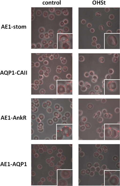 Proximity ligation assays for protein interaction between AE1 and stomatin (AE1-stom).RBCs from a control (stomatin-positive) and an OHSt (stomatin-deficient) patient were treated as described in experimental procedures, using anti-AE1 along with anti-stomatin antibodies and anti-AE1 along with anti-ankyrin R antibodies. For controls, two other pairs of antibodies were used: anti-AQP1 along with anti-CAII (positive controls) and anti-AE1 along with anti-AQP1 (negative controls). After PLA, RBCs were examined by confocal microscopy using a Zeiss LSM700 inverted confocal microscope equipped with a x100 oil-immersion objective, numerical aperture 1.4. Z-stack confocal image capture was performed and analyzed using the ZEN software.