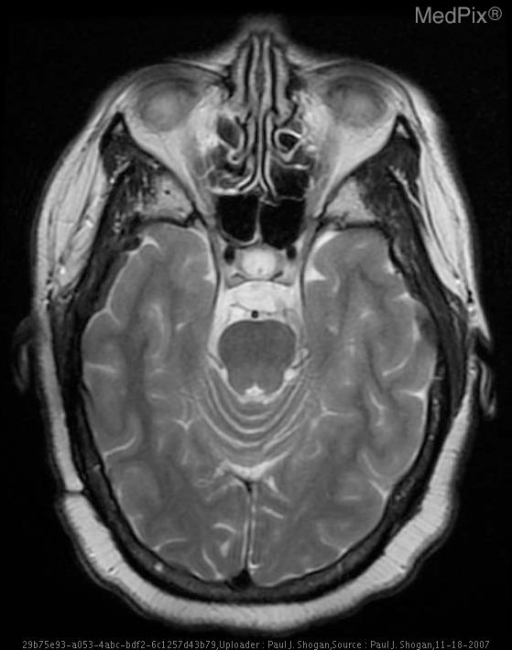 Axial T2 weighted image demonstrates the lamellated mass, which is heterogenous in signal intensity posterior to the hypophsial fossa and anterior to the basilar artery.