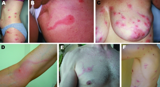 A–F) Photographs of 6 persons with skin lesions of Pyemotes ventricosus dermatitis. Note the central microvesicles, ulcerations or crusts, and some lesions with the comet sign. D) Lymphangitis-like dermatitis. E, F) Lesions resulting from natural infection of 2 of the investigators.
