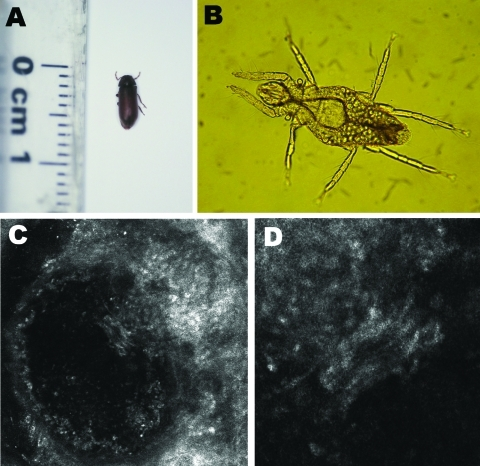Organisms involved in transmission of Pyemotes ventricosus dermatitis. A) Common furniture beetle (Anobium punctatum) (5 × 2 mm). B) Nongravid female P. ventricosus mite (210 × 40 μm). C) Confocal laser scanning microscopy (CLSM) image (CLSM Vivascope 1500 microscope; Lucid Inc., Rochester, NY, USA) of a P. ventricosus mite (210 × 40 μm) in its microvesicle. D) Higher magnification of the microvesicle in panel C (light area in the center) (magnification ×4).