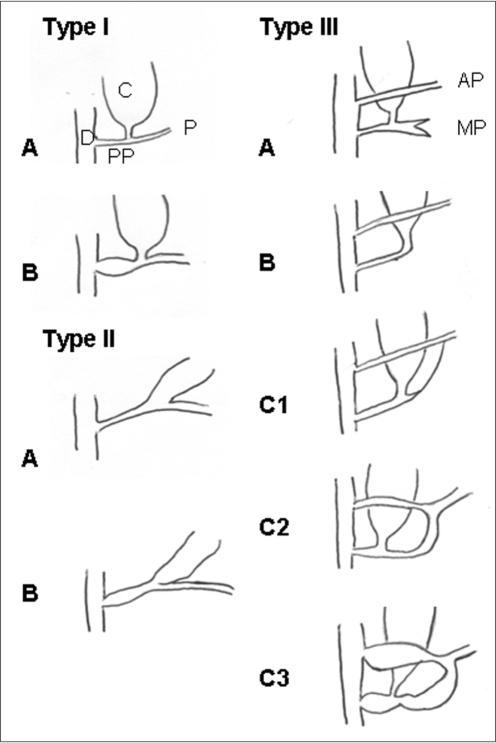 Figure 1 Imaging Features Of Adult Choledochal Cysts A Pictorial Review Open I