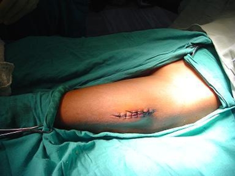 Stitched surgical incision with no active bleed at the time of presentation