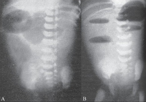 Supine (A) and erect (B) radiographs show a markedly dilated stomach and duodenal loop proximally in the supine position with air-fluid levels in the upright position