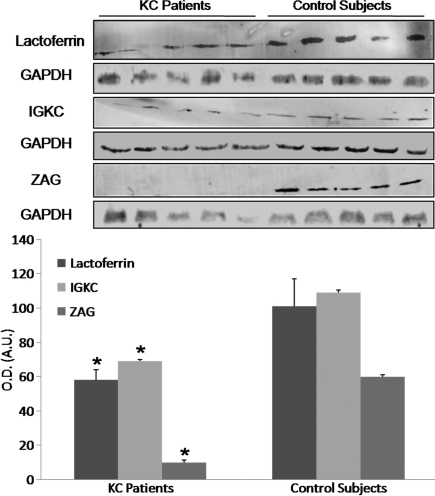 Western-blot analysis of the identified proteins showing a significant decrease in protein expression of zinc-α2-glycoprotein (ZAG), lactoferrin, and IGKC (immunoglobulin kappa chain) in KC patients compared to control subjects. O.D.: optical density; A.U.: arbitrary units; GAPDH: glyceraldehyde-3-phosphate dehydrogenase; *p<0.05 versus control subjects.