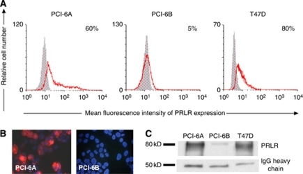PRLR expression in SCCHN cell lines. (A) PRLR expression measured by flow cytometry in PCI-6A, PCI-6B and T47D cell lines. The PCI-6A cell line shows a significantly higher percentage of PRLR+ cells compared with the PCI-6B cell line. (B) Immunocytochemical staining of SCCHN cell lines (magnification × 400). Positive membranous and cytoplasmic PRLR staining (red colour of Cy3) is shown for the PCI-6A cell line, whereas the PCI-6B cell line is negative. Nuclei are counterstained with Hoechst dye (blue). (C) Immunoprecipitation reveals a prominent band between 75 and 80 kD, corresponding to the PRLR protein in the lysate of PCI-6A cells, whereas only a weak band was detected in the lysate of PCI-6B cells. Immunoglobulin G (IgG) heavy chain was used as a loading control and T47D cell line served as a positive control.