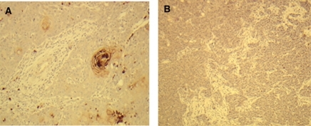 PRLR expression in SCCHN tissues. In agreement with the corresponding cell lines PCI-6A and PCI-6B, the primary tumour (A) shows PRLR positivity, whereas the metachronously developed neck lymph node metastasis (B) is PRLR negative.
