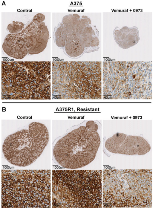 Immunohistochemical staining of GLUT-1. Vemurafenib treatment induces decreases in both total and membrane GLUT-1 staining in A375 tumors but not in the resistant A375R1 line. Immunohistochemical staining for GLUT-1 in (A) A375 tumor xenografts and (B) A375R1-resistant xenografts.