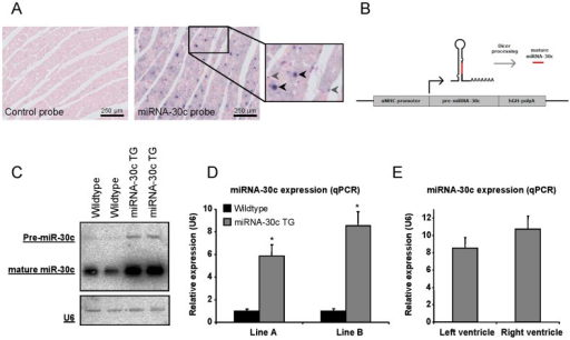 MiRNA-30c expression in the heart and the generation of αMHC-miRNA-30c transgenic mice (miRNA-30c TG).(a) MiRNA-30c in situ hybridization on adult wildtype hearts shows expression in the nuclei of both cardiomyocytes (black arrowheads) and interstitial cells (grey arrowheads). The cytoplasm is also miRNA-30c positive. (b) Schematic overview of the miRNA-30c overexpression construct used for the generation of transgenic mice. (c) Northern blot for miRNA-30c in wildtype and transgenic littermates in line B at 8 weeks of age. U6 was used as a loading control and shows similar loading. (d) Quantification of miRNA-30c overexpression by qPCR in both transgenic lines at 4 weeks of age (N≥6). (e) MiRNA-30c expression in left en right ventricular tissue of line B at 4 weeks of age (N = 6). Error bars represent s.e.m. and * denotes a p-value ≤0.05.