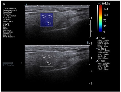 Sonoelastography picture: normal parotid gland tissue is marked as blue, which confirms parenchyma low stiffness.