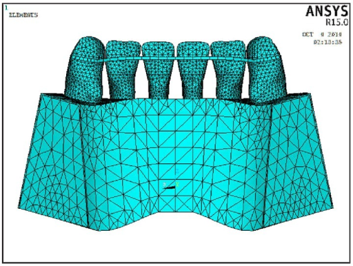 Model 1 in which the flexible spiral wire bonded to the lingual teeth surfaces.
