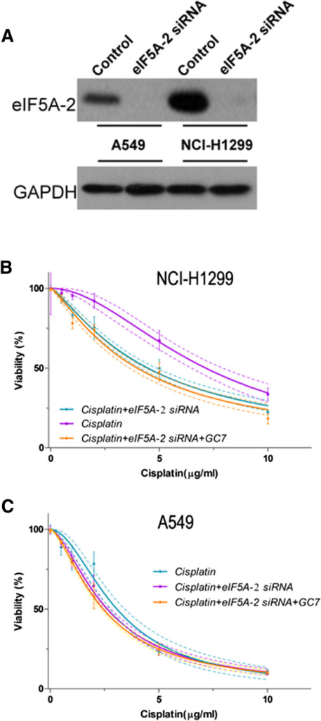 GC7 enhanced cisplatin sensitivity in NSCLC cells via inhibition of eIF5A-2. (A) eIF5A-2 siRNA inhibits eIF5A-2 in both A549 and NCI-H1299 cells. (B–C) Comparing changes in cisplatin sensitivity in A549 and NCI-H1299 NSCLC cells after treatment with eIF5A-2 siRNA alone or combined with GC7.