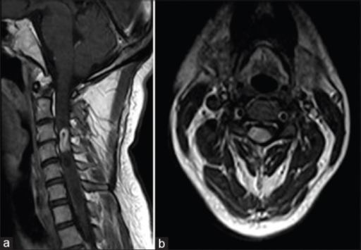 (a and b) Postgadolinium sagittal (a) and axial (b) images showing an intensely enhancing intramedullary mass at C3–C4 level
