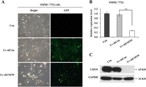 Expression of USP39 is suppressed efficiently in SMMC-7721 cells after Lv-shUSP39 infection. (A) Representative images of Con, Lv-shCon and Lv-shUSP39 infected SMMC-7721 cells under fluorescence microscope. Left, bright field; right, GFP. Scale bar, 10 μm. (B) qRT-PCR analyzed mRNA levels of USP39 in Con, Lv-shCon and Lv-shUSP39 infected SMMC-7721 cells. Actin was used as control gene. **, P < 0.01. (C) Western blotting analysis of protein levels of USP39 in in Con, Lv-shCon and Lv-shUSP39 infected SMMC-7721 cells. GAPDH was used as control protein.