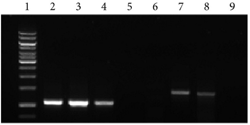Relative transgene copy number. The extracted genomic DNA from the transduced cells at day 2 and 7 after transduction was subjected to PCR to amplify the transgene region of the sample. Lane 1: 1 kb ladder; Lanes 2–4: PCR with primers specific for HPRT gene; Lane 2: Untransduced genomic DNA (positive control for PCR); Lane 3: transduced genomic DNA extracted at day 2 after transduction (positive control for relative transgene copy number); Lane 4: transduced genomic DNA extracted at day 7 after transduction (positive control for relative transgene copy number); Lane 5: PCR reaction without DNA (negative control); Lane 6–9: PCR with primers specific to transgene; Lane 6: untransduced genomic DNA; Lane 7: transduced genomic DNA extracted at day 2 after transduction; Lane 8: transduced genomic DNA extracted at day 7 after transduction; Lane 9: PCR reaction without DNA (negative control for PCR).