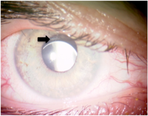 Postoperative photograph of IOL decentration.The picture shows mild downward decentration of the retropupillary IOL (patient 2, right eye, arrow).