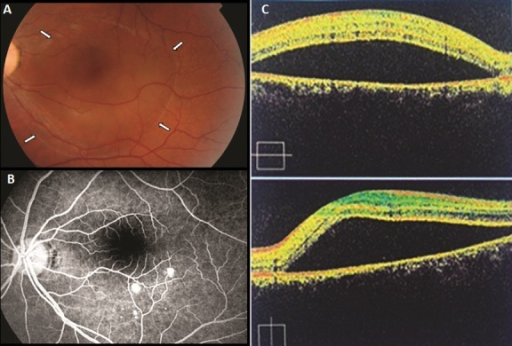 (A): photography of fundus showing CSCR limites; (white arrow) (B): the fluoresceine angio showing leakage points; (C): OCT scan demonstrating the neurosensory detachment