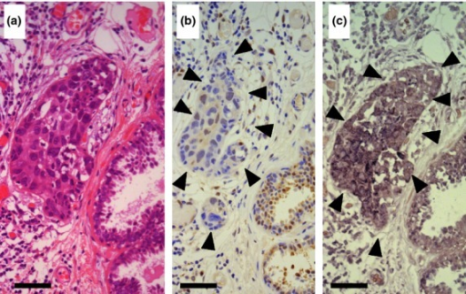Expression of DJ-1 protein and mRNA in a breast cancer biopsy specimen. (a) The breast cancer nest is located in the center of the H&E stained specimen. Non-cancerous ducts are seen in the right lower corner. Bar = 50 μm (originally 400 high power fields). (b) Immunohistochemistry of DJ-1, in the same area as in (a). The immunoreactivity in the cancerous area is marked by arrowheads, and was analyzed by the image analyzer WinROOF. The average intensity of DJ-1 staining in the non-cancerous ducts located in the right corner was determined as the threshold value by applying the hue–lightness–saturation color space. The expression of DJ-1 in the cancerous area was judged as low because the intensity of DJ-1 staining was lower than the threshold value in the cancerous area. (c) In situ hybridization of DJ-1, in the same area as in (a, b). Upregulation of DJ-1 mRNA was detected in the cancerous lesion (arrowheads).