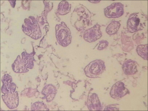 ×10 view showing daughter cysts with scolex and germinal layers