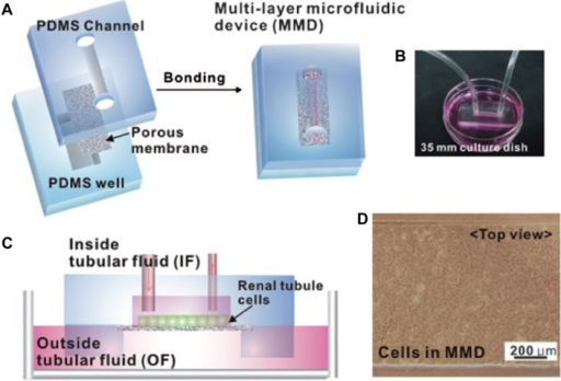 Fabrication and operation of a multilayer microfluidic device (MMD) for efficient culture and analysis of renal tubular cells. (A) Sandwich structure of MMD. Photograph (B) and schematic of the device (C) on a culture dish containing outside tubular fluid. (D) Microscope image of IMCD cells grown confluently after seeding three days within the MMD. Reproduced from Jang KJ, Suh KY. A multi-layer microfluidic device for efficient culture and analysis of renal tubular cells. Lab Chip. 2010;10(1):36–42, with permission from the Royal Society of Chemistry.