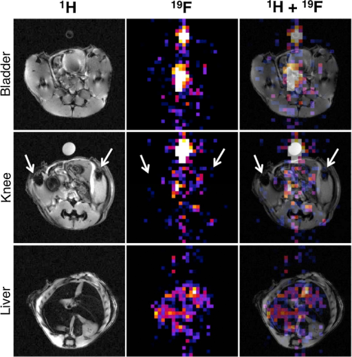 Animal MR imaging study (see Section 4 for details). A mouse was injected with 19F-BP i.v. (108 mM in PBS buffer) and imaged using 1H (left column) and 19F MRI (middle column), which were overlayed to determine location (right column). Top row is an axial slice through the bladder/urinary tract area, second row an axial slice through the knees (arrows) and the third row an axial slice through the liver. A vial containing a known amount of 19F-BP was positioned next to the animal for reference.
