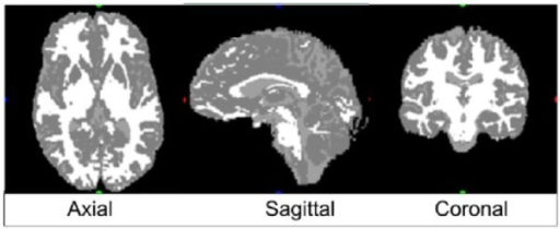 Indicative results of the segmentation in gray scale. Black color (red, green, blue [RGB] [0, 0, 0]) corresponds to anything outside the inner surface of the skull that defines the cranial cavity. This implies that black color can represent cranial bones, air, etc. White color (RGB [255, 255, 255]) corresponds to white matter, RGB (128, 128, 128) corresponds to gray matter, and RGB (160, 160, 160) corresponds to cerebrospinal fluid.