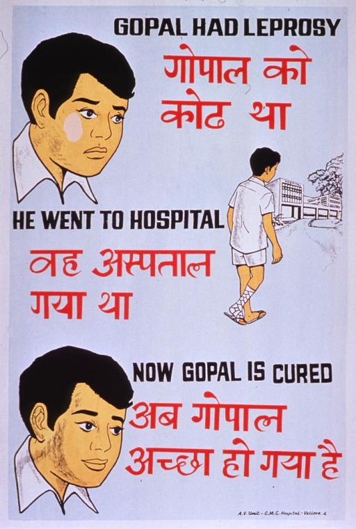 <p>Predominantly light blue poster with black and red lettering.  Some text in a Devanagari script (Hindi?).  Title at top of poster.  Visual images are illustrations of a man with an ulcer on his cheek, a man with a bandaged leg walking toward a hospital, and a man with a clear face.  Caption text dispersed throughout poster.  Publisher information in lower right corner.</p>