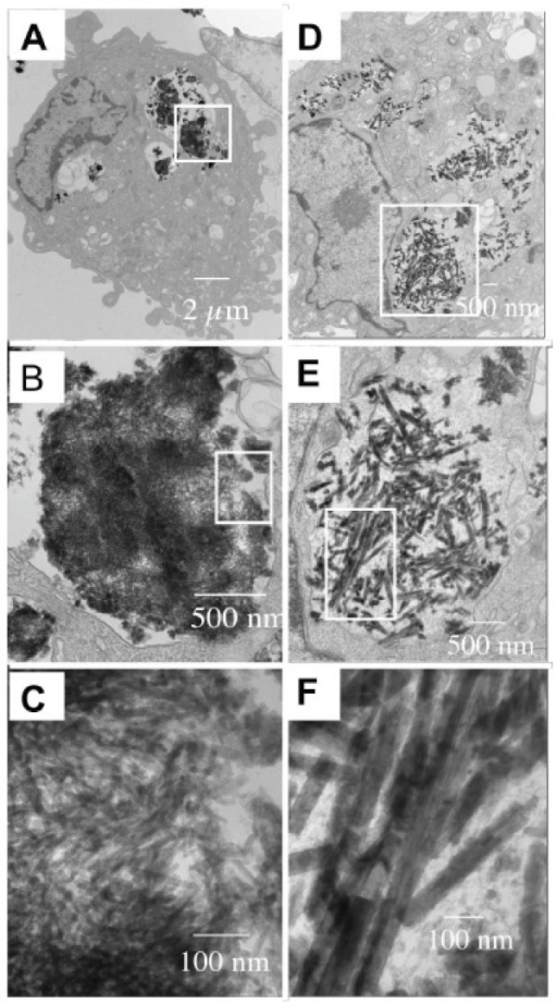 Fluorescent LnPO4·H2O nanorods were visualized by TEM inside the cytoplasmic compartments of HUVEC. (A-C) EuPO4·H2O nanorods and (D-F) TbPO4·H2O nanorodsare observed inside the HUVEC with increasing magnifications. B was the enlarge picture of white block in A, C was the enlarge picture of white block in B. Similarly, E was the enlarge picture of white block in D and F was the enlarge picture of white block in E.