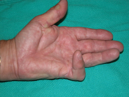Classical presentation of Dupuytren's contracture. The most commonly affected digits are the ulnar digits (ring and small fingers). Surgery is indicated when joint contracture exceeds 30°, or when nodules are painful and interfere with hand function.