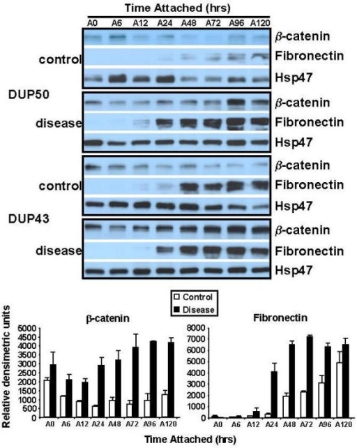 Western analysis of β-catenin and Fn in attached FPCLs. Attached FPCLs (3 lattices per cell line) were harvested at the indicated time points, homogenized, and protein extract prepared for western analysis. Membranes were sequentially probed with β-catenin (1:750; clone 14, Transduction Laboratories), Fn (clone IST-4, 1:500, Sigma), and Hsp47 (1:500, StressGen) antibodies. Antibody-specific bands for β-catenin and fibronectin and Hsp47 were quantified using NIH Imaging software, normalized to Hsp47 levels (ratios), and plotted (bar graphs, lower panel) as the mean ratio intensity ± SEM per time point. Two patient-matched disease and normal/control primary cultures were examined.