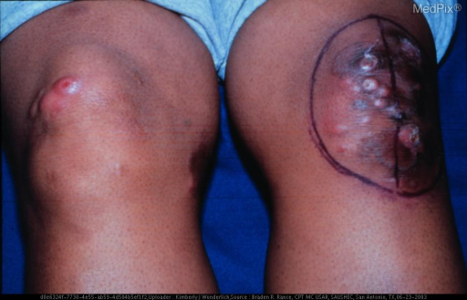 Nodules and plaques on bilateral lower extremities representing progression of underlying mycosis fungoides to cutaneous T-cell lymphoma.
