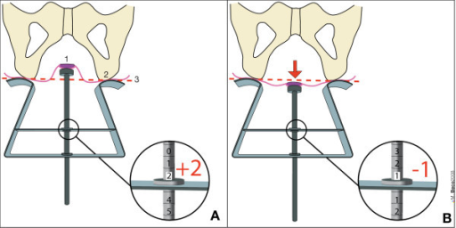 Use of Perineocaliper® (Duchateau SA, Liège, Belgium). A: position of anal margin 2 cm higher than the ischial tuberosities (value = + 2 cm) at rest and in gynecological position (with thighs flexed to 90 degrees). B: during Valsalva's maneuver (red arrow) the anal margin is 1 cm below the ischial tuberosities (value = - 1 cm). View from the top as during clinical measurement. In this case, perineal descent = 3 cm (difference between A and B). 1 = anal margin. 2 = ischial tuberosity. 3 = level of the ischial tuberosities = reference or zero level.