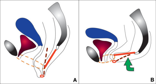 Anti-sagging test on a sagittal section. A: sagging of the levator plate – descending perineum syndrome (levator plate or ano-coccygeal raphe in red) during Valsalva's maneuver. B: anti-sagging test: support of the posterior perineum restores normal position. Dotted lines represent structures which are not in the section plane: thin lines = limits of the levator hiatus (increase of its size if perineal descent during Valsalva's maneuver), thick lines = right pudendal nerve (stretching induced by perineal descent). Small red ring = anal sphincter.