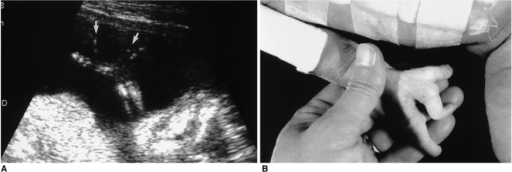 Ectrodactyly (split hands or feet).A. The hand of this fetus has only four fingers, with abnormal widening between the second and third finger (arrows).B. Neonatal photograph demonstrates lobster claw deformity of the hand.